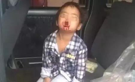 这次是真的,宜宾4岁女孩嘴唇被狗咬掉满嘴是血!