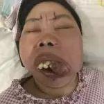 【桦南爱心求助】家人为了上颚癌的我已经走投无路,求广大好心人救救我!!!