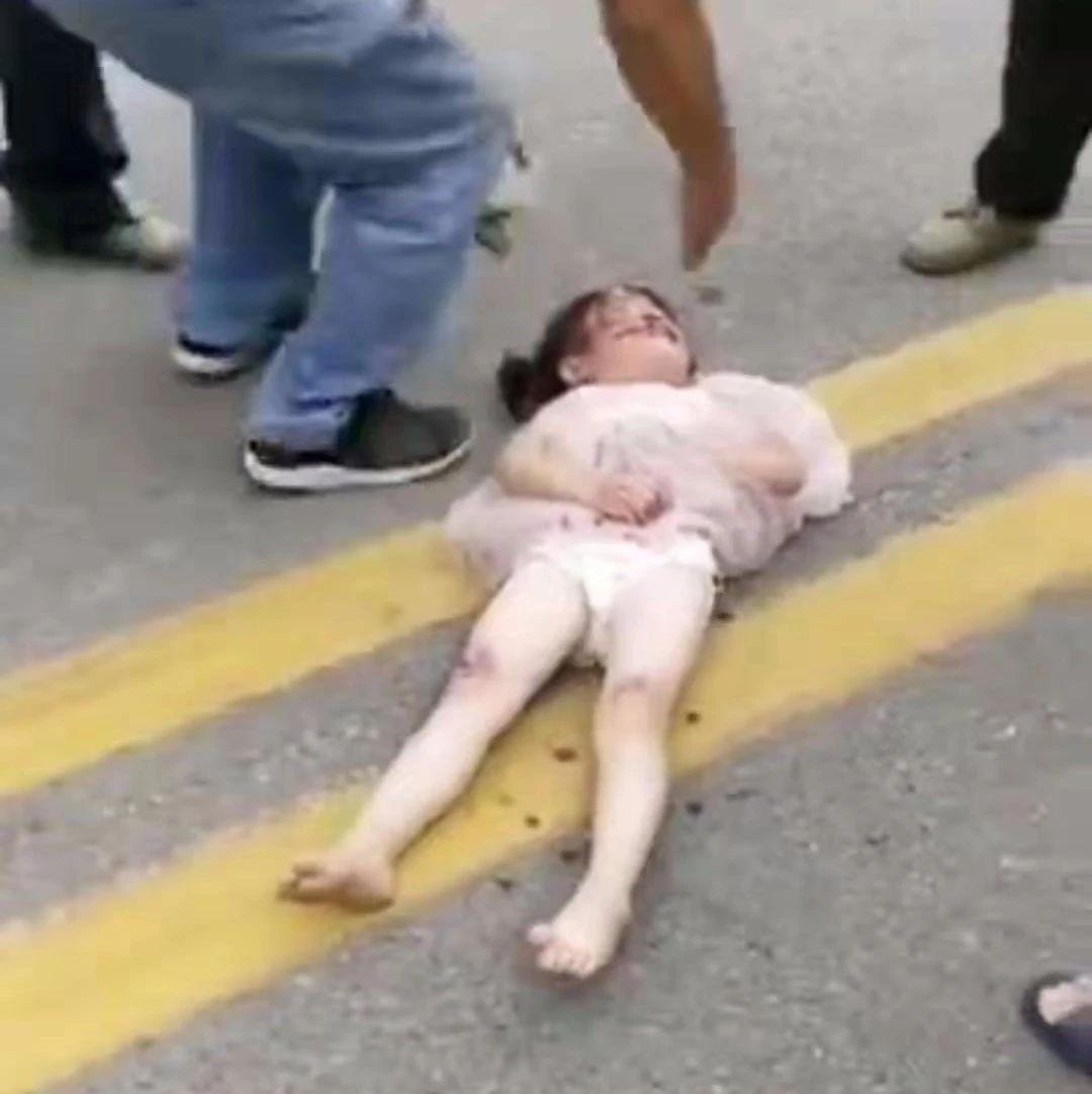 金寨双河一小女孩过马路时被撞受伤!现场视频!