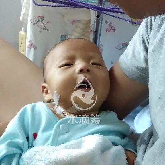 不到1岁的小王子身患先天性胆道闭锁,救救我的孩子!