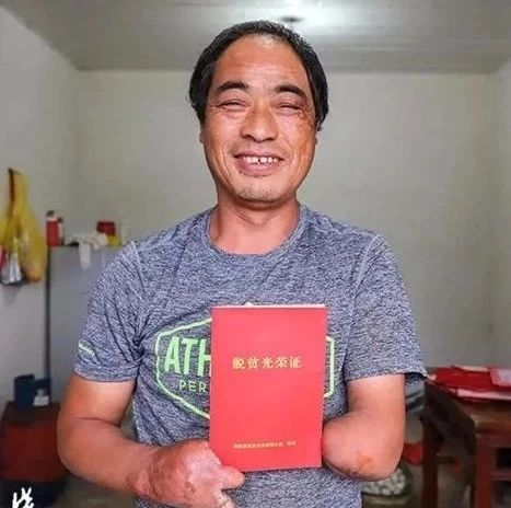 敬佩!安徽这位独臂汉子用两根残指撑起绚烂人生!感动中国!