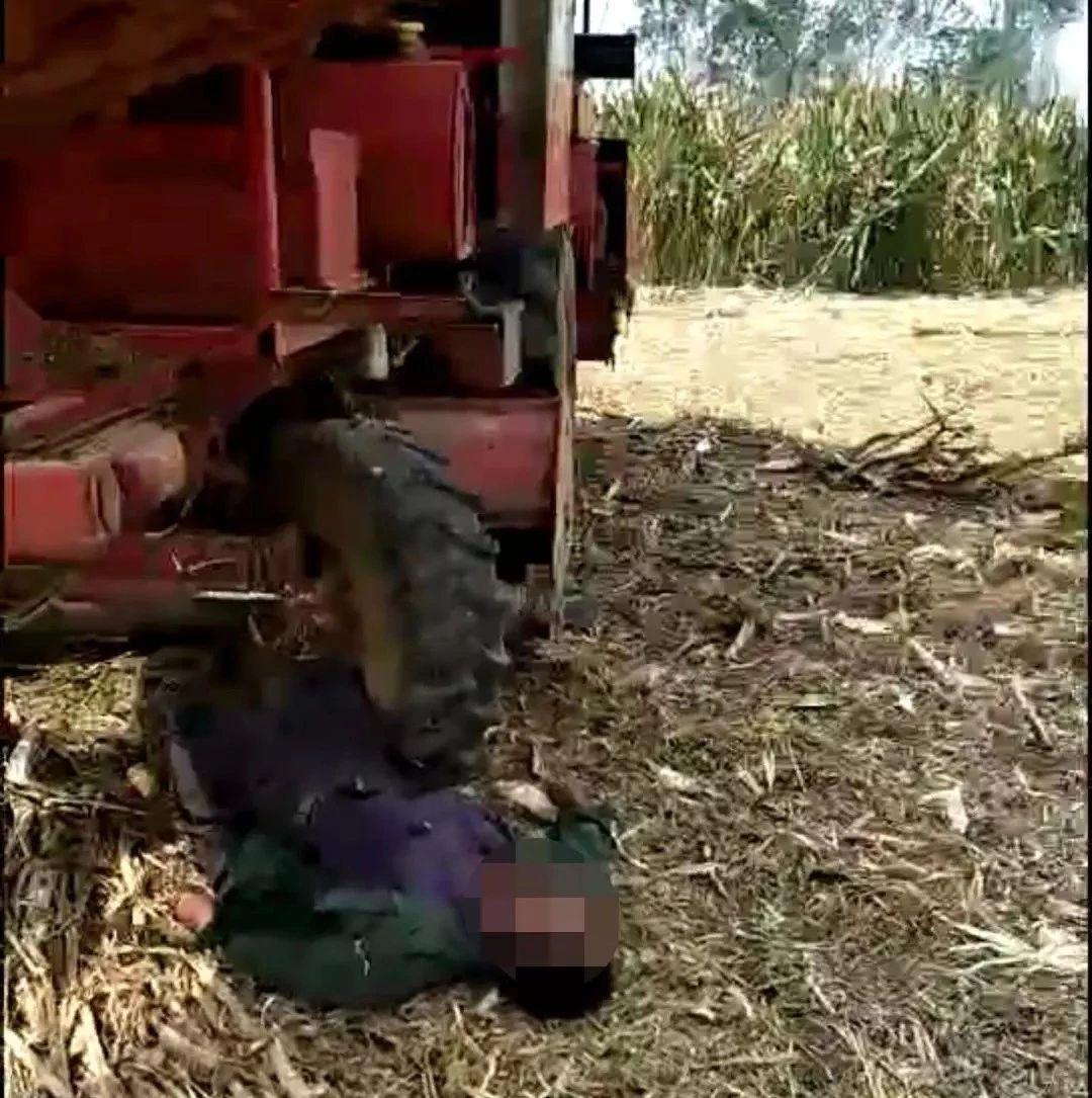 """一老人玉米地里""""解手""""被卷入玉米收割机,现已转入滨州医院进行治疗,老人的双腿已..."""