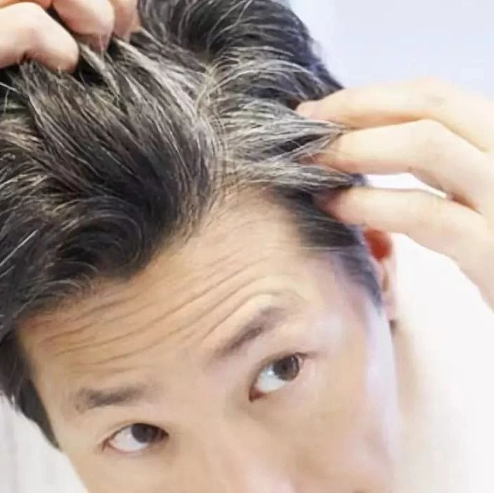 看头发就知道你身体好不好!这次不只脱发那么简单