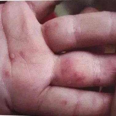 【城事】澳门金沙城中心人速看!吉林省发布最新传染病疫情!这几种病发病率最高…