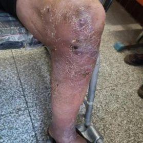 近日,新蔡同安医院多学科会诊治愈一例罕见病――诺卡氏病