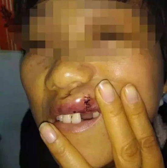 六安一女子在派出所被打伤……