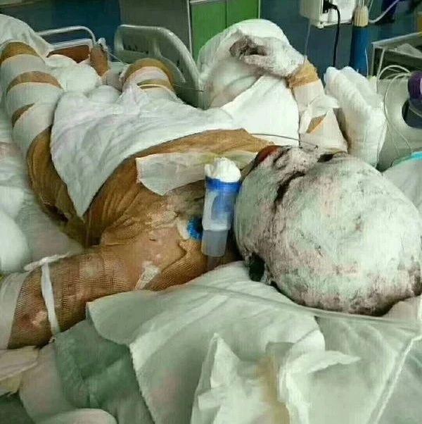 9月8日,漯河一木材厂突发大火致2死2伤,官方最新通报!