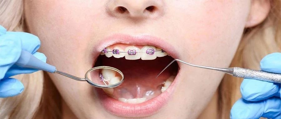 牙�X不�R,下巴不美�^,能通�^整牙改善�幔�