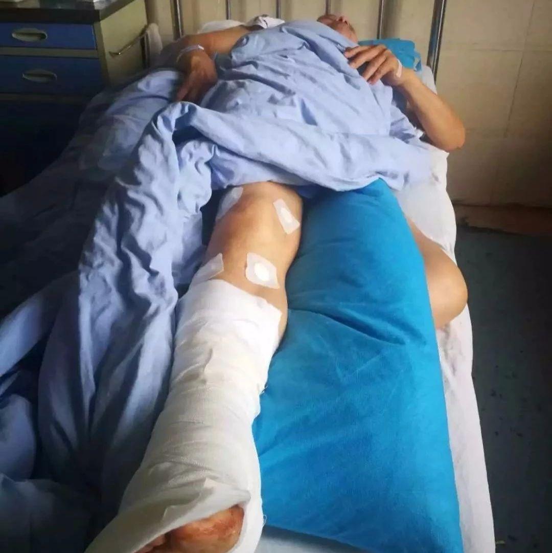 天降横祸!南溪一78岁老人被狂风卷起的木板砸伤!腰杆都断了!