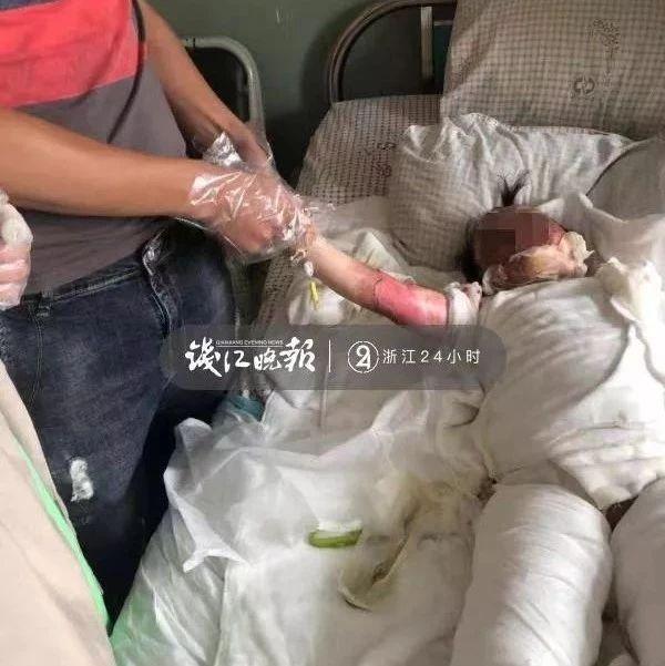 揪心!2岁女宝宝摔进170度油锅!心急爸妈一个动作让她更受伤
