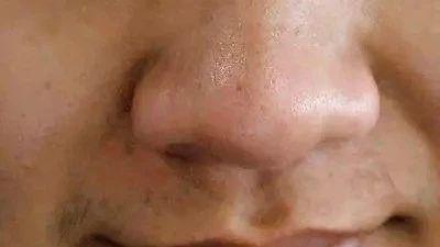 鼻子决定寿命长短!出现这个信号,可能是大病征兆!