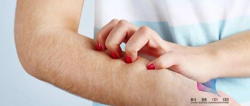 【提醒】皮肤瘙痒,竟暗藏肿瘤!这些可能是疾病信号,要警惕!