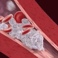 【提醒】颈动脉,人体最怕堵的血管!50%中风都跟它有关