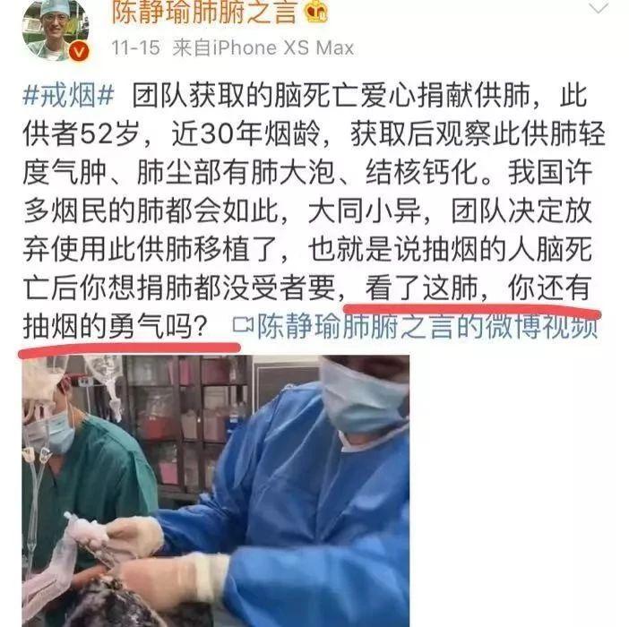 可怕!30年���g男子捐肺,�t生取出后放��使用