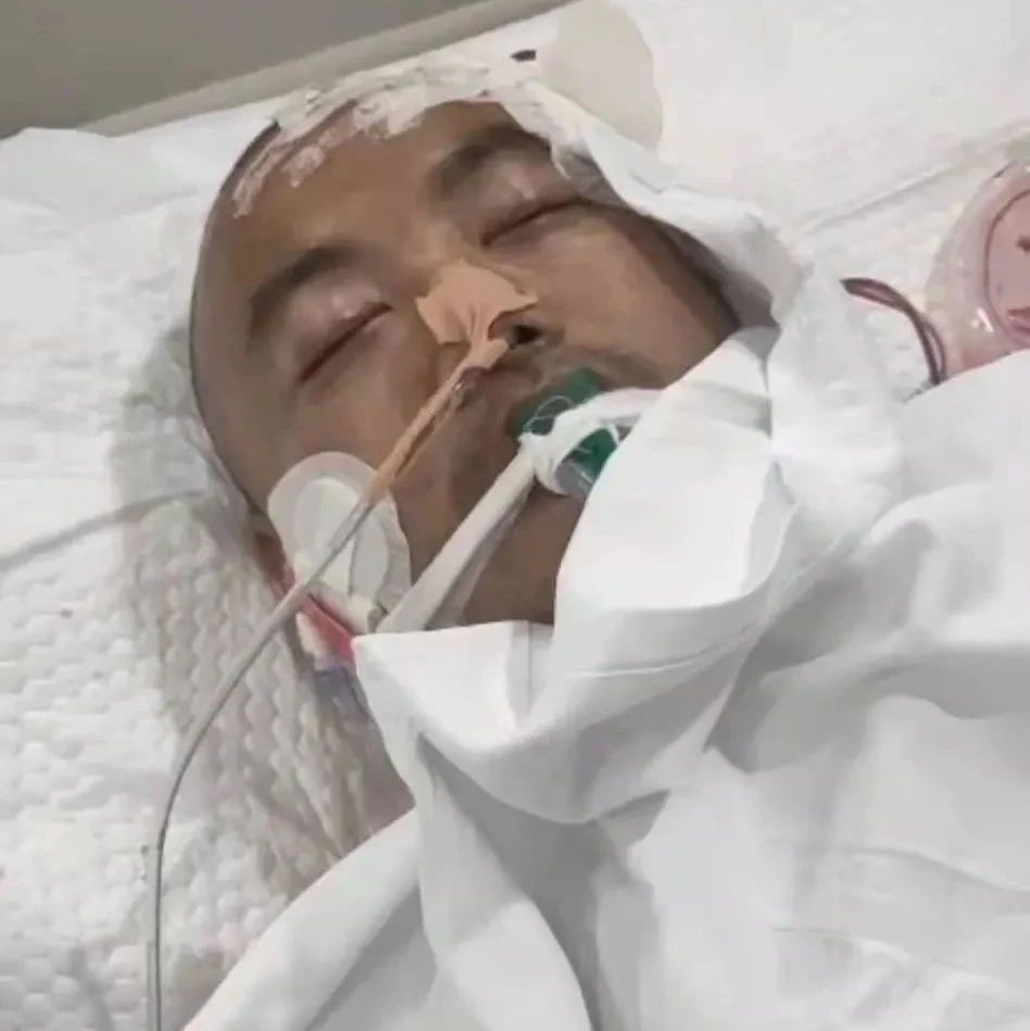"""长葛一医生倒在疫苗接种一线!在""""ICU""""25天仍昏迷不醒…"""