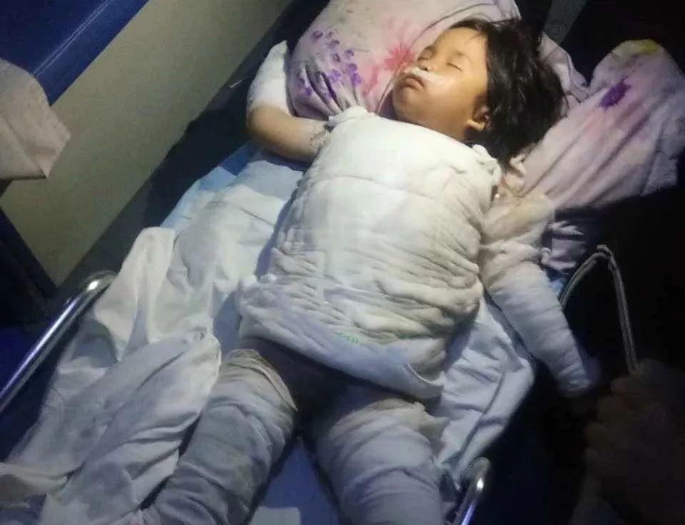 悲惨!新化5岁女孩被开水烫成重伤,生命垂危!