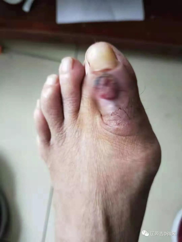 辽源女子脚趾长肿物医生说需截肢结果…
