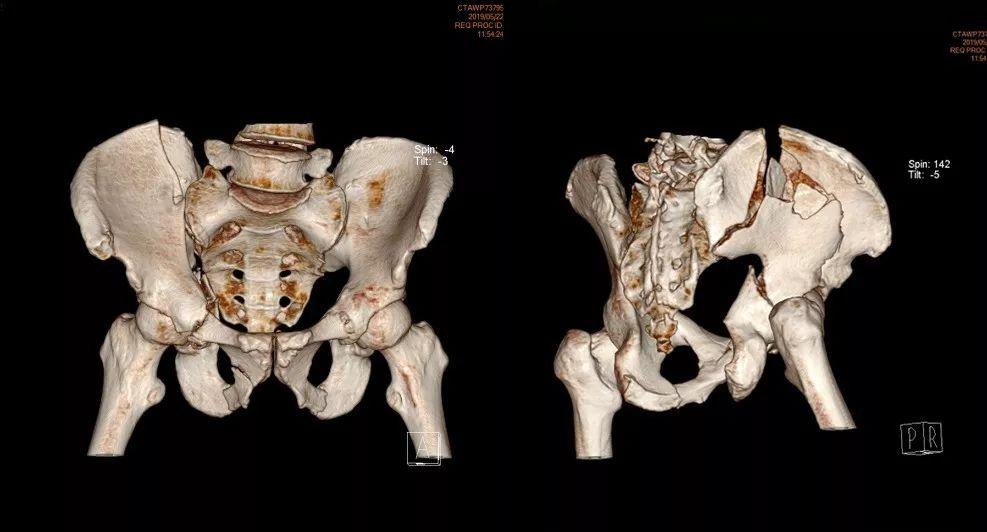 泸州一工人16层高楼坠落,全身多处粉碎性骨折,3D打印助精准复位固定