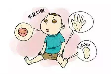 手足口病进入流行期,仁寿家长们务必知道这些