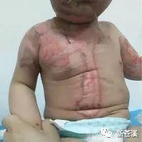 【突发】龙山一小孩重度烫伤,正在医院接受治疗,欢迎爱心人士献出你的爱心