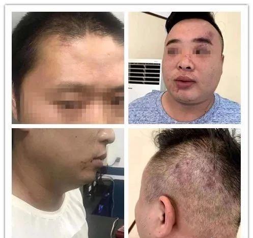 泸州180斤男子吃面遭暴打,涉案5人被刑拘