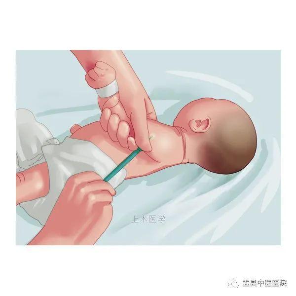 """【医疗知识科普】如何应对婴幼儿""""秋季腹泻""""?家长们看这里!"""