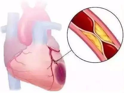 【健康】血栓最怕这个动作,躺着就能做,每天只需10秒!