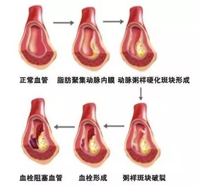 孝感人45�q后,常吃�@�煞N食物,�p松化血栓,�A防慢性病!