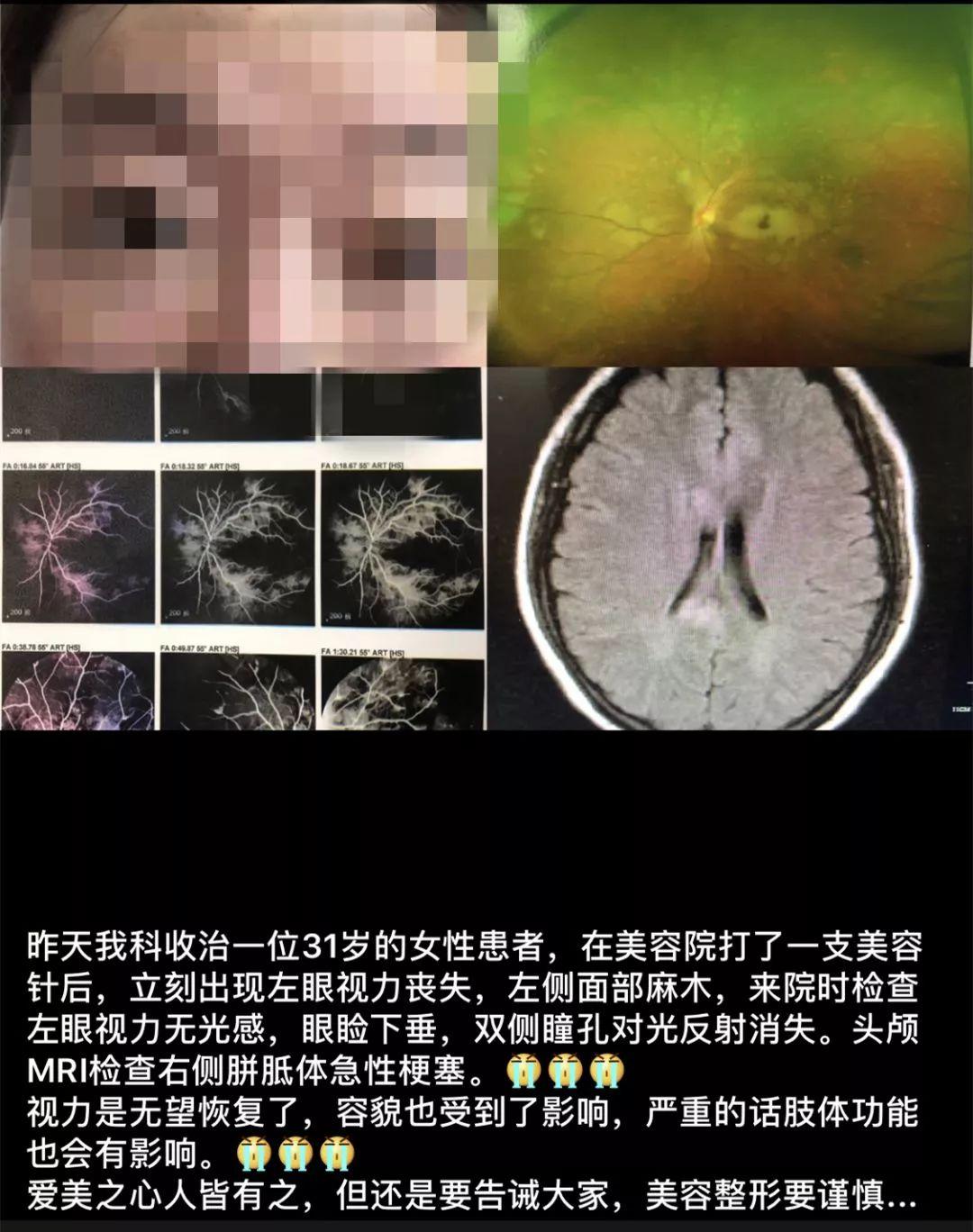 一针扎下去,31岁女子左眼瞎了,这种针千万别再打了!