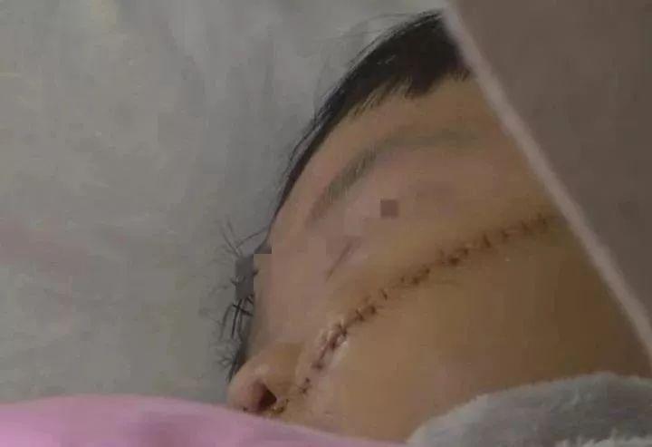 安徽女子将嫂子一家五口砍成重伤!最小伤者才一岁多!
