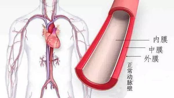 高血压如何引起动脉粥样斑块?8句话告诉你!
