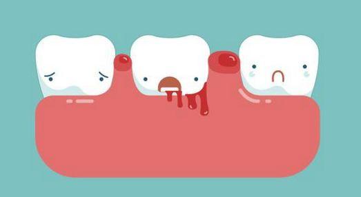 """""""牙龈出血""""的人牙齿掉得快!90%的人刷牙都遗漏了这个地方"""
