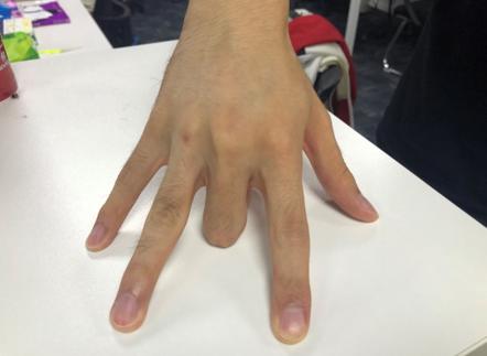 抬不起来的手指