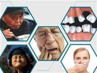 @儋(dan)州市民,這家醫院本周(zhou)六抽取免費種牙、矯正、補牙、潔牙名額!速來!