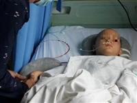气愤!疑因妈妈与继父发生纠纷!思南香坝8岁半女童疑遭继父砍伤!面临瘫痪!