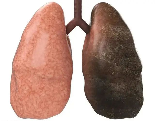 长期吸烟的人戒烟,肺部能恢复到最初的样子吗?